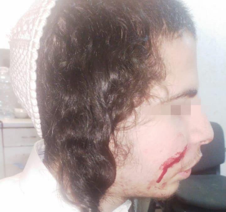 Три человека с ножом напали на брацлавского хасида в Умани