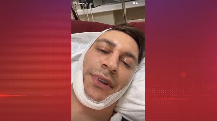 «Всю ночь тошнило»: Манукян с перемотанной головой рассказал о перенесенной операции